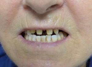 Diş Temizletme