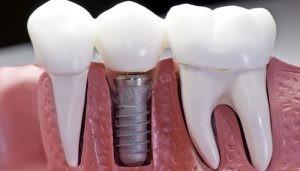 tek diş implant uygulaması ve köprü
