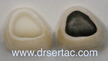 Zirkonyum diş kaplama ile porselen diş kaplama karşılaştırılması